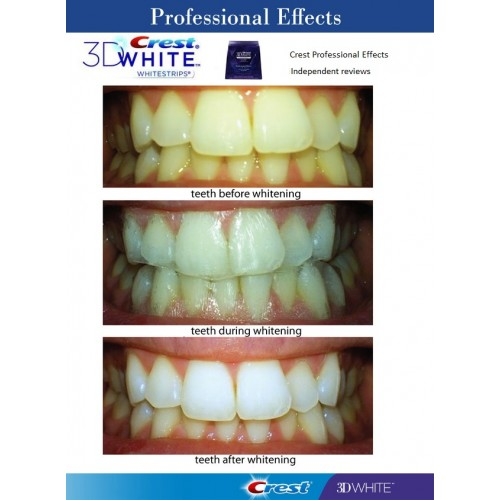 Crest 3D White Professional Effects Whitestrips Teeth